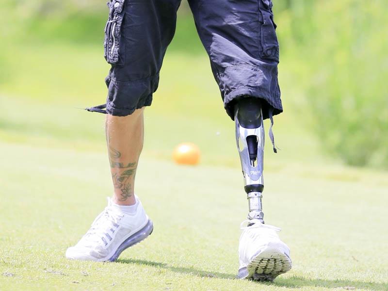 prosthetic and limb loss solutions east coast orthotic