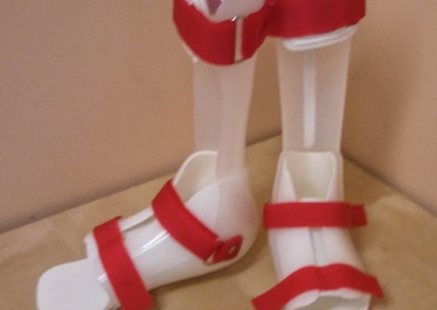 Ankle Foot Orthotic (AFO)